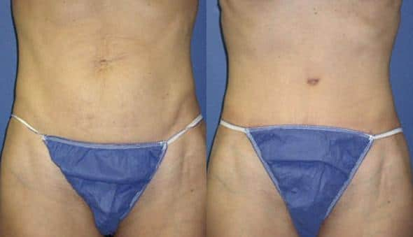 patient-2981-tummy-tuck-abdominoplasty-before-after