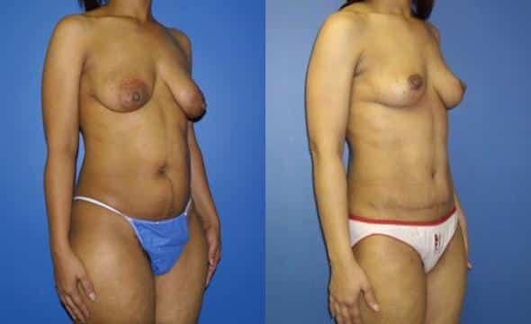 patient-2988-tummy-tuck-abdominoplasty-before-after-1