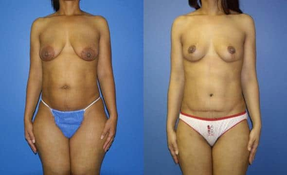 patient-2988-tummy-tuck-abdominoplasty-before-after