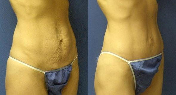 patient-2999-tummy-tuck-abdominoplasty-before-after-1
