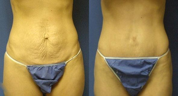 patient-2999-tummy-tuck-abdominoplasty-before-after