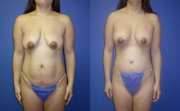 patient-3010-tummy-tuck-abdominoplasty-before-after