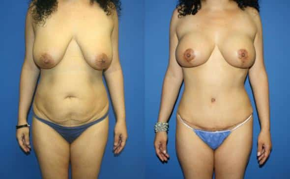 patient-3017-tummy-tuck-abdominoplasty-before-after