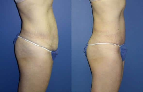 patient-3029-tummy-tuck-abdominoplasty-before-after