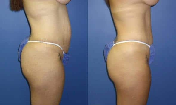 Procedure on body and tummy tuck