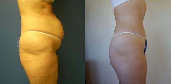 patient-3037-tummy-tuck-abdominoplasty-before-after
