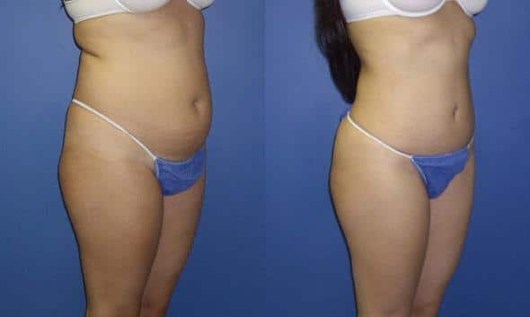 patient-3040-tummy-tuck-abdominoplasty-before-after-1