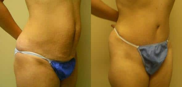 patient-3047-tummy-tuck-abdominoplasty-before-after-1