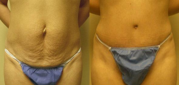 patient-3047-tummy-tuck-abdominoplasty-before-after