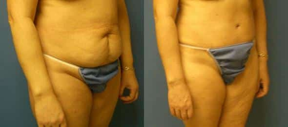 patient-3052-tummy-tuck-revision-before-after-1