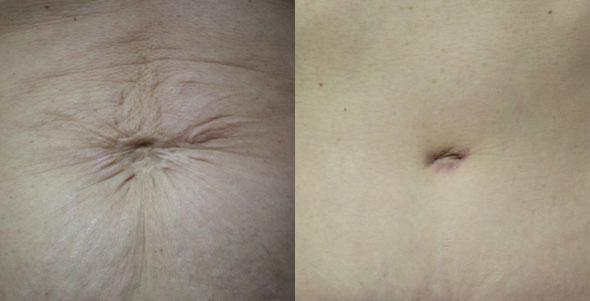 patient-3060-tummy-tuck-revision-before-after-1