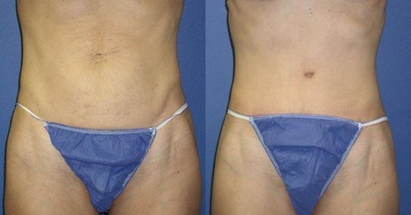 patient-3060-tummy-tuck-revision-before-after