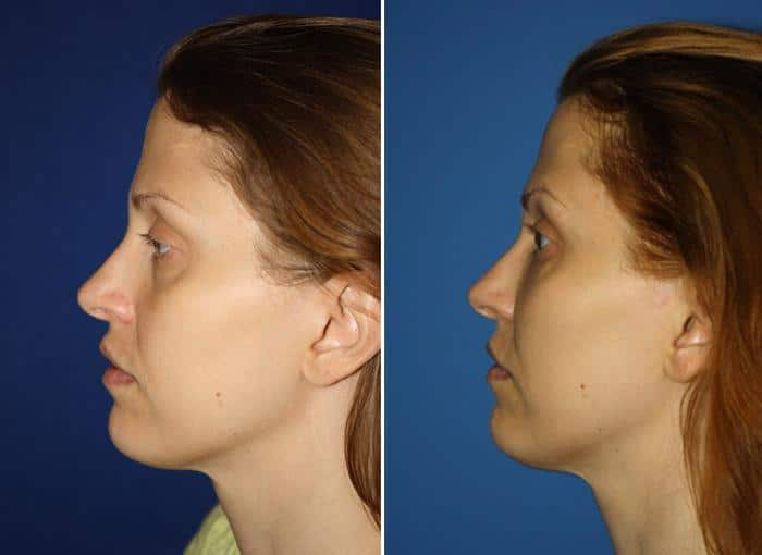 patient-3067-ulthera-before-after-1