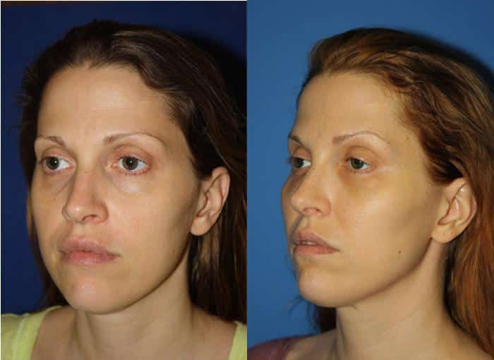 patient-3067-ulthera-before-after-2