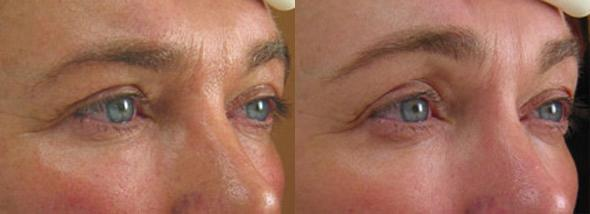 patient-3076-ulthera-before-after