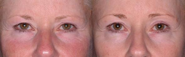 patient-3079-ulthera-before-after