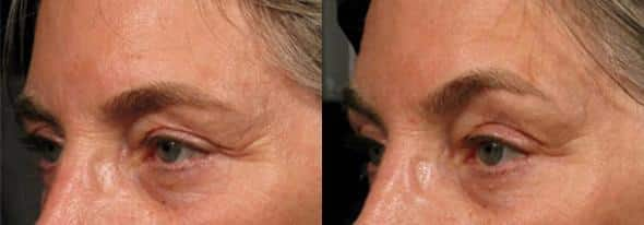 patient-3082-ulthera-before-after