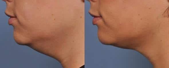 patient-3092-ulthera-before-after-1