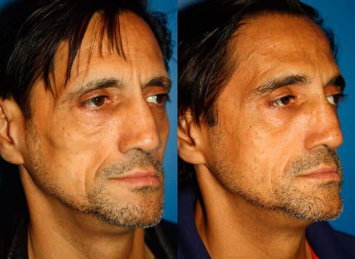 patient-3098-wrinkle-treatments-before-after-1