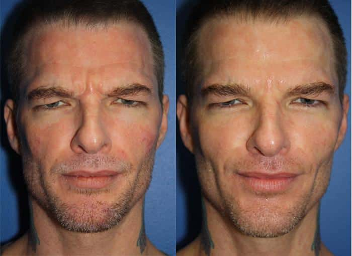 patient-3105-wrinkle-treatments-before-after