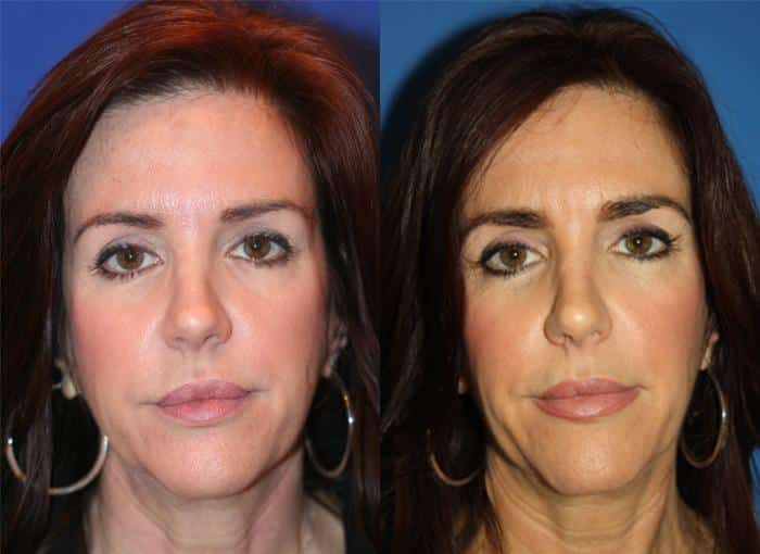patient-3109-wrinkle-treatments-before-after