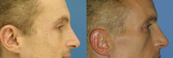 patient-3113-wrinkle-treatments-before-after-1