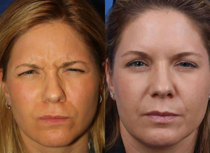patient-3118-wrinkle-treatments-before-after