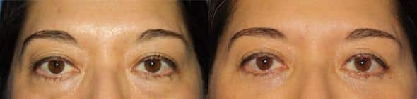patient-465-blepharoplasty-before-after-2