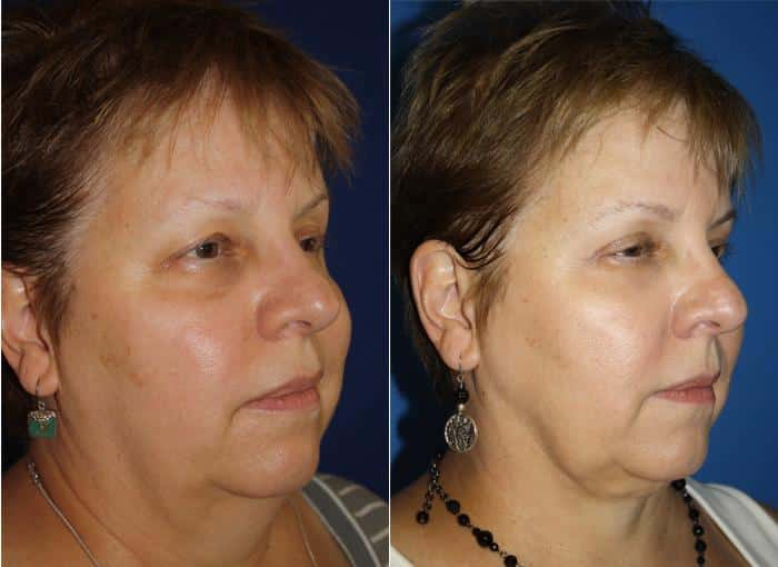 patient-473-blepharoplasty-before-after-1