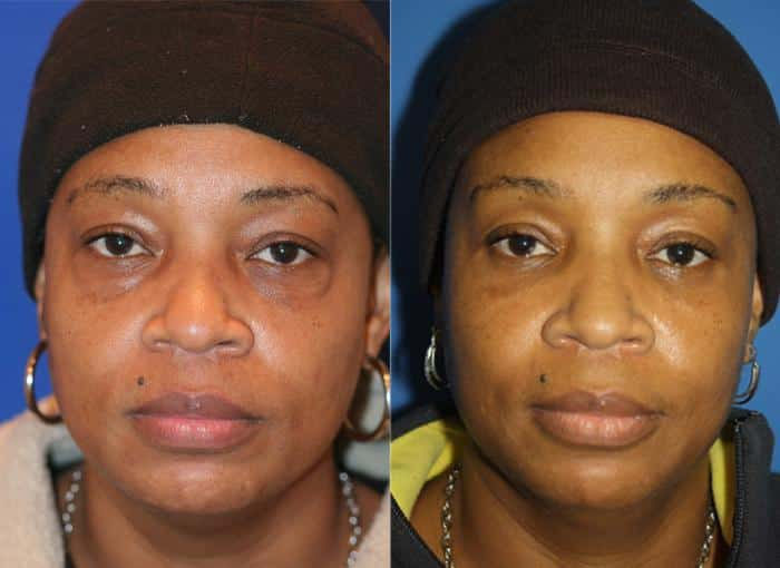 patient-476-blepharoplasty-before-after-2