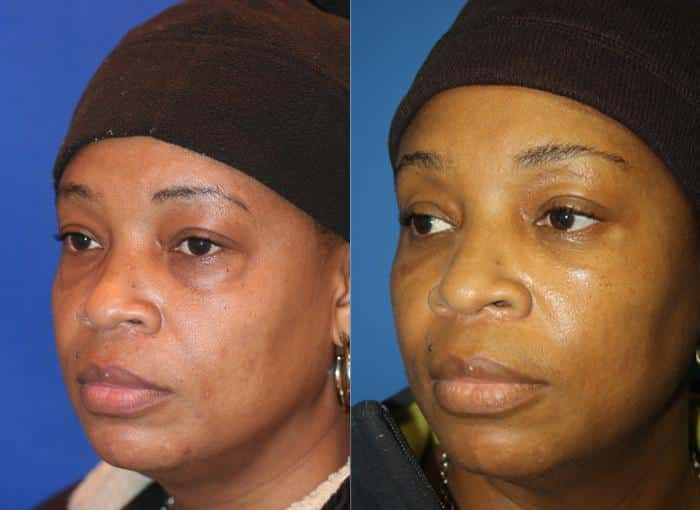patient-476-blepharoplasty-before-after-3