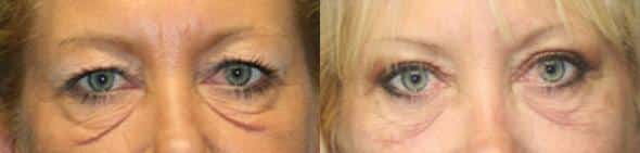 patient-564-blepharoplasty-before-after-2