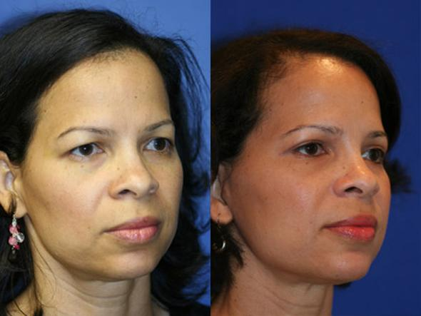 patient-578-blepharoplasty-before-after-4