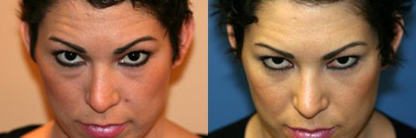 patient-585-blepharoplasty-before-after-3