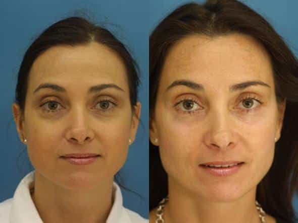 patient-601-blepharoplasty-before-after-4