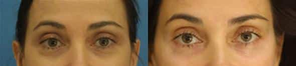 patient-601-blepharoplasty-before-after-5