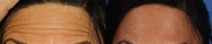 patient-609-botox-before-after-2