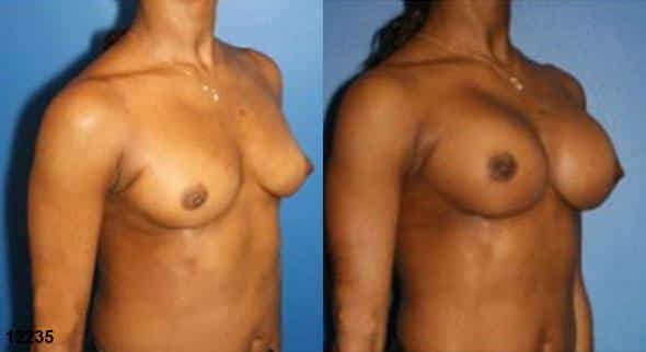 patient-612-breast-augmentation-before-after-1