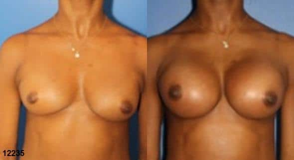 patient-612-breast-augmentation-before-after