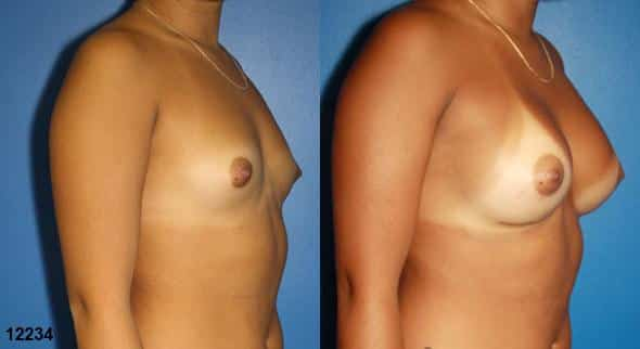 patient-623-breast-augmentation-before-after-1