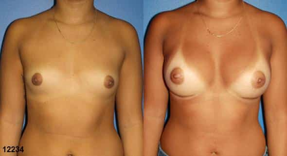 patient-623-breast-augmentation-before-after