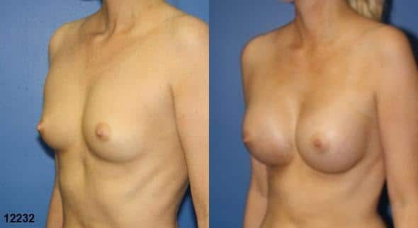 patient-720-breast-augmentation-before-after-1
