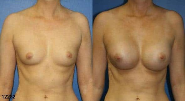 patient-720-breast-augmentation-before-after