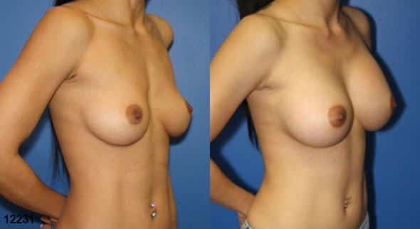 patient-727-breast-augmentation-before-after-1