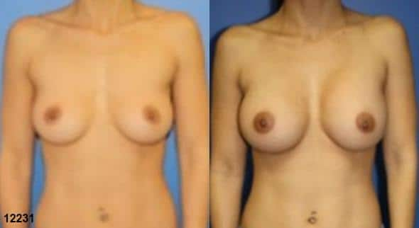 patient-727-breast-augmentation-before-after