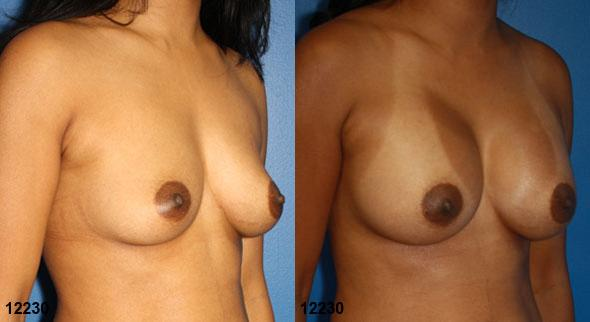 patient-738-breast-augmentation-before-after-1