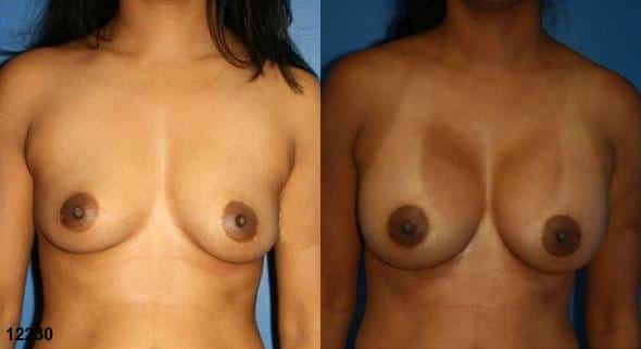 patient-738-breast-augmentation-before-after