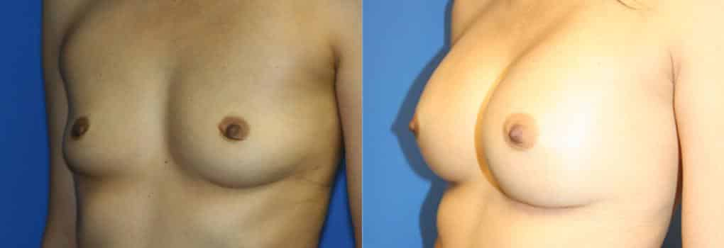 patient-749-breast-augmentation-before-after-1