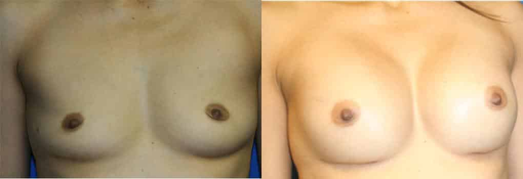 patient-749-breast-augmentation-before-after