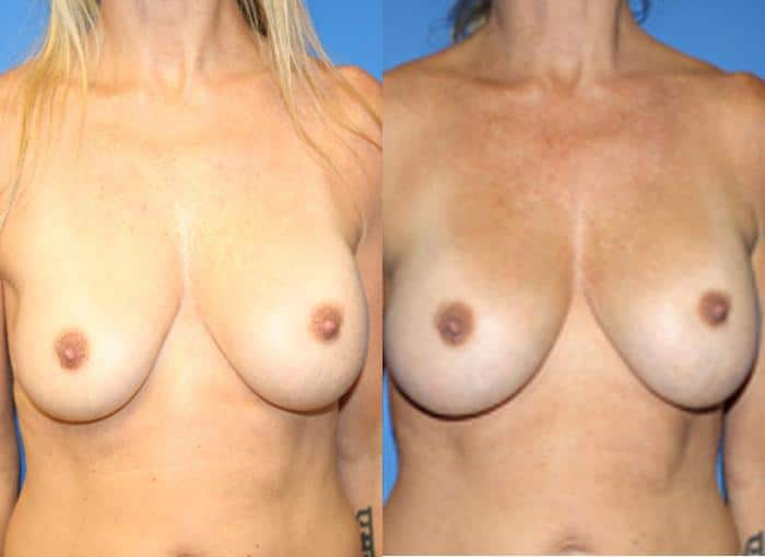patient-756-breast-augmentation-before-after